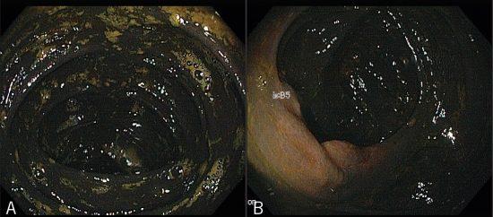 大腸黒皮症