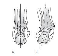posture13